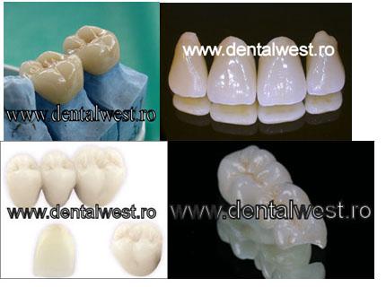Lucrare dentara tip punte