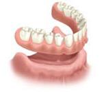Pacient cu edentatie totala - toti dintii lipsa