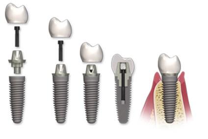 Coroane pe implant