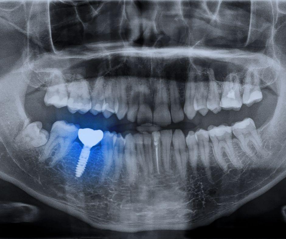 Implantologie Brasov