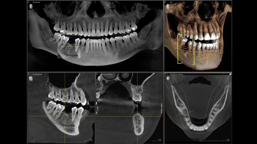 Radiografii si tomografii dentare
